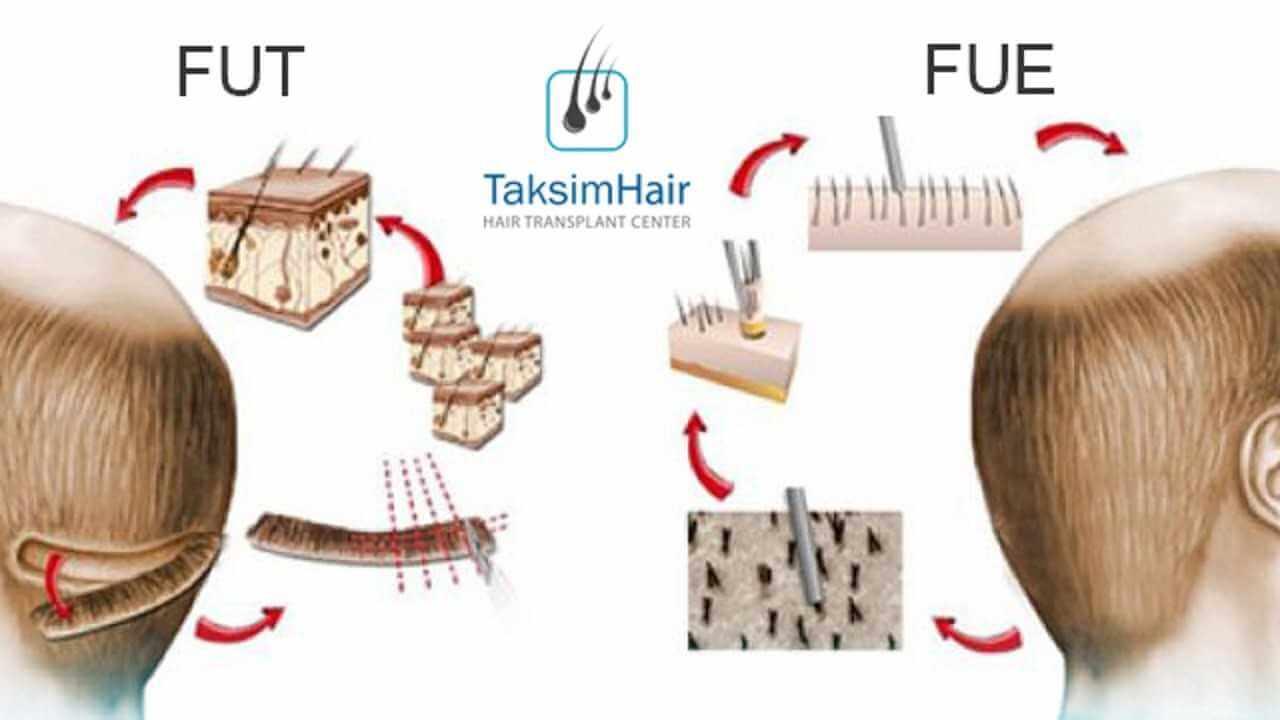 الفرق بين زراعة الشعر بتقنية FUE وتقنية FUT