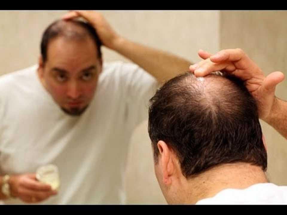أسباب تساقط الشعر لدي الرجال