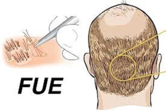 الفرق بين زراعة الشعر بتقنية CHOI وتقنية FUE