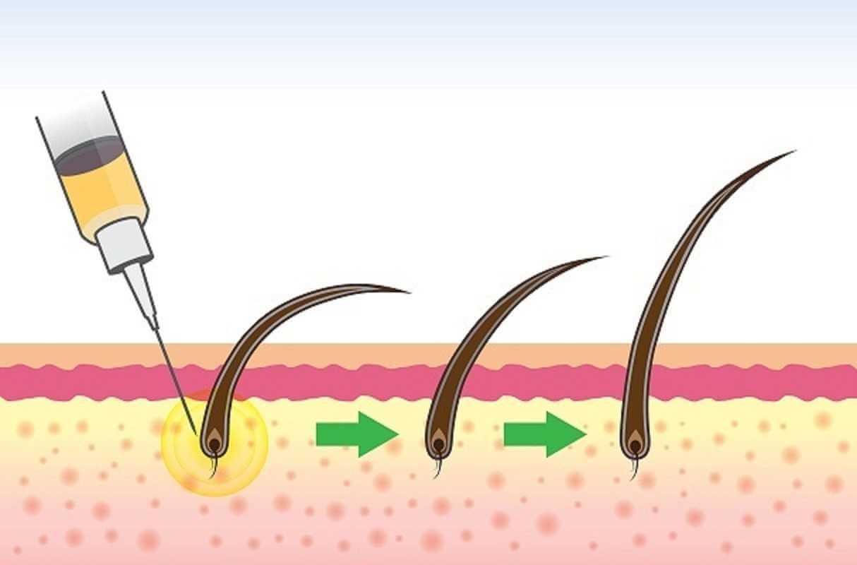 تقنية الخلايا الجذعية في زراعة الشعر
