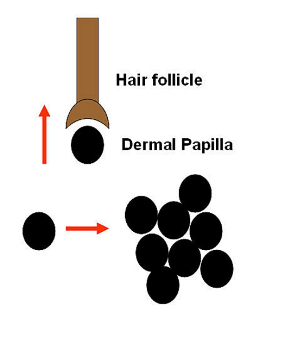 التطورات الحديثة في مجال زراعة الشعر