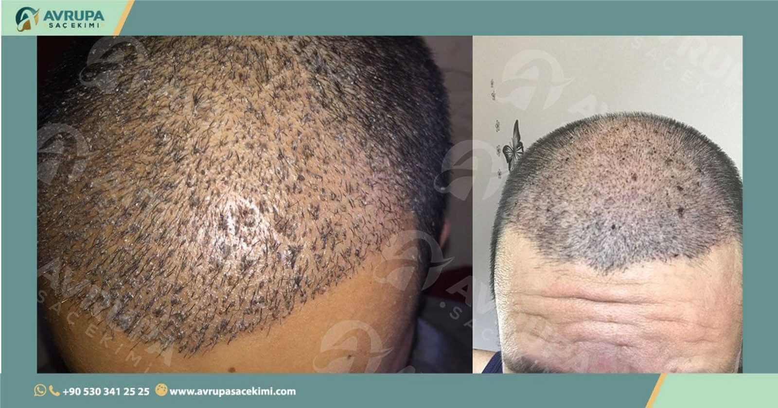 تجربة زراعة الشعر في تركيا