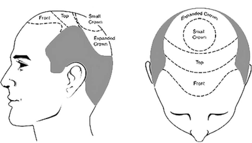 تقنية FUE الحديثة في زراعة الشعر