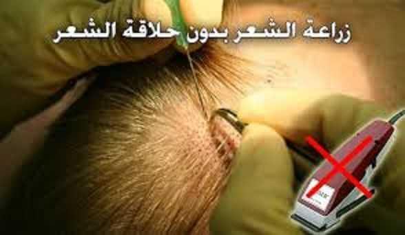 زراعة الشعر بدون حلاقة