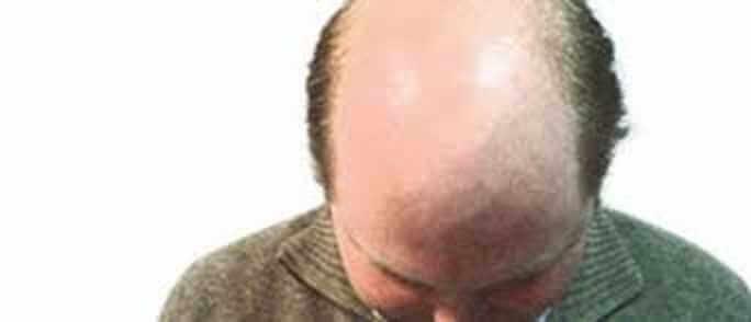 أسباب وعلاج الصلع عند الرجال