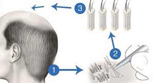 تقنية زراعة الشعر أقلام تشوي