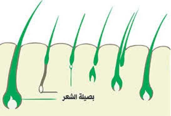 تساقط الشعر المزروع بعد العملية