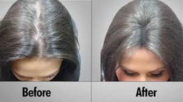 الاعتناء بشعرك بعد عملية زراعة الشعر