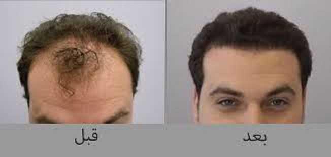 تجارب عمليات زراعة الشعر