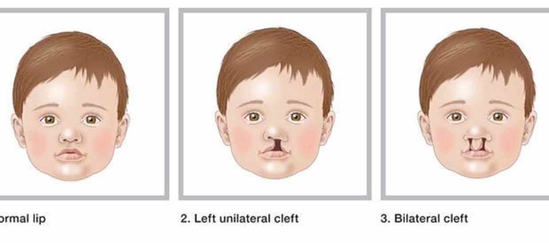 عملية تجميل الانف للأطفال