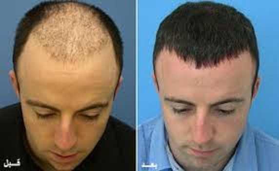 عمليات تجميل الشعر