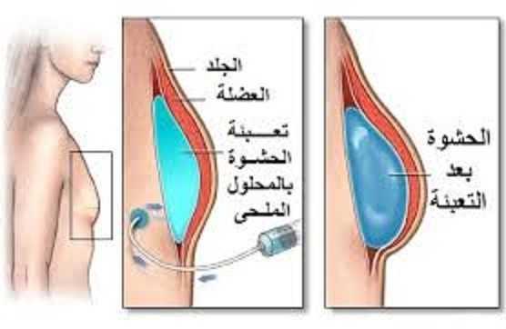عمليات تجميل الثدي
