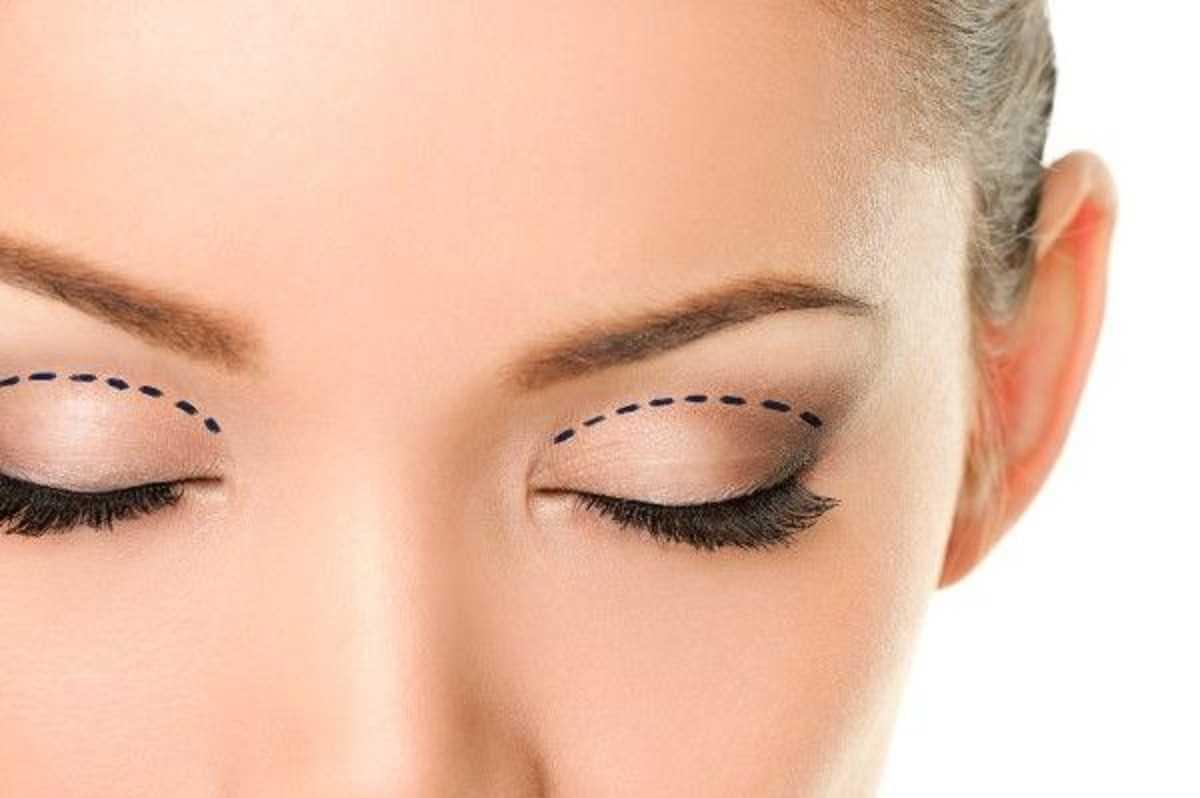 عملية تجميل جفن العين