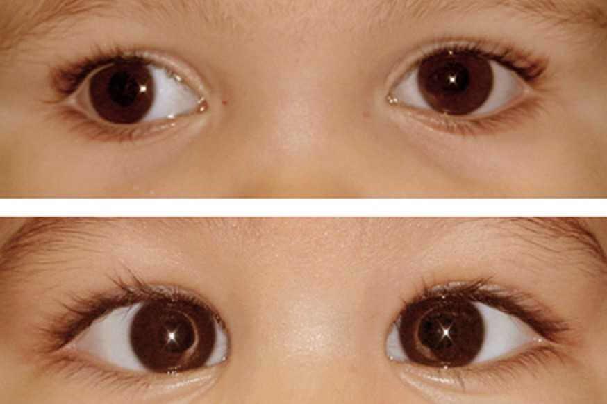 علاج عيون الحول