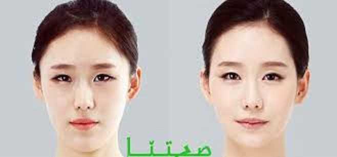 عمليات تجميل العيون