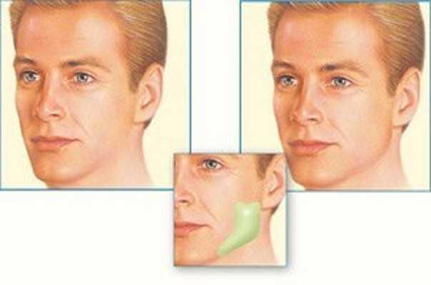عمليات تجميل الوجه والفكين