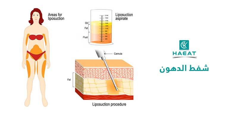 عملية شفط الدهون Liposuction
