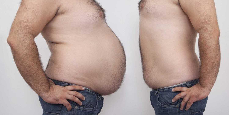 شفط الدهون من البطن