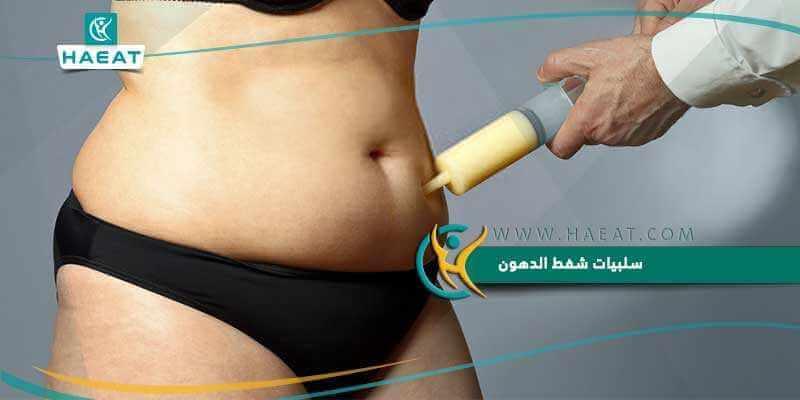 سلبيات شفط الدهون