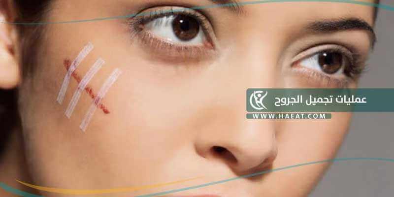 عمليات تجميل الجروح ماهي التقنيات المستخدمة لإزالة الجروح وماهي تكاليفها حياة Haeat