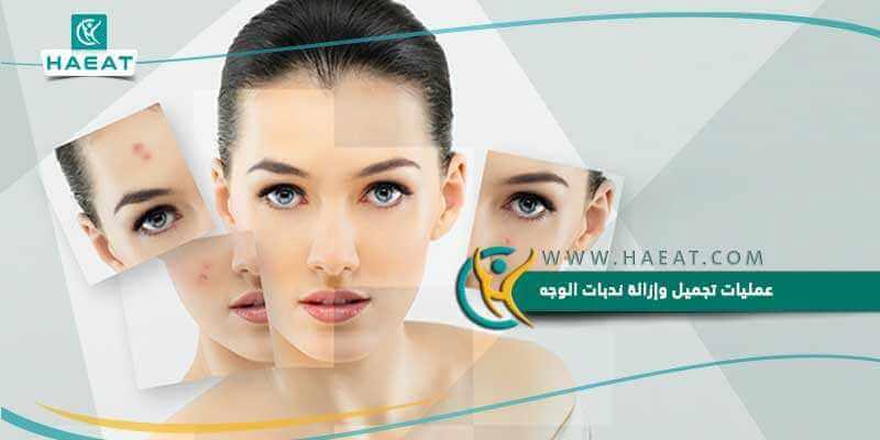 عمليات تجميل وإزالة ندبات الوجه