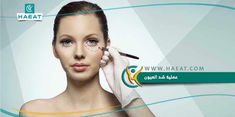 6fccb4528 عملية شد العيون وكيفية إجرائها بالطرق الجراحية وبعض النصائح والإجراءات قبل  العملية