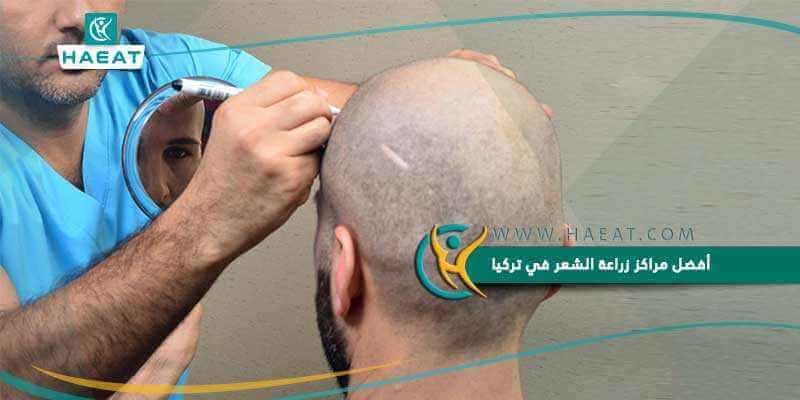 أفضل مراكز زراعة الشعر في تركيا
