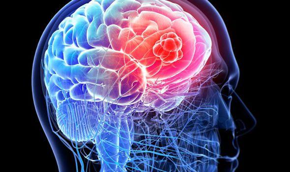 سرطان الدماغ الأعراض الاسباب التشخيص العلاج مضاعفات حياة Haeat